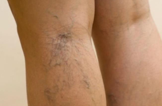 spital cu vene de vene pe picioare